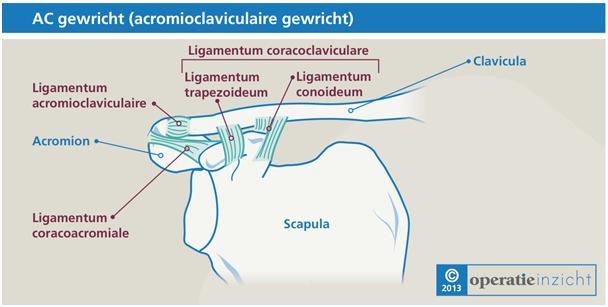 www.learningsupport.nl/files/operatie-inzicht/anatomie/gewrichten/ac-gewricht-acromioclaviculaire-gewricht.png